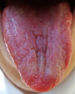 Red Tip of the Tongue - Traditional Chinese Medicine