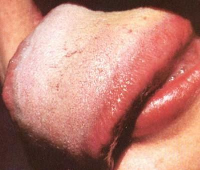 Liver-sides-2