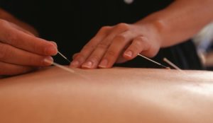 clinical_use_of_back_shu_points_in_acupuncture