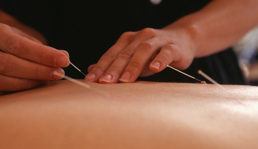 The Clinical Use of the Back-Shu Points in Acupuncture