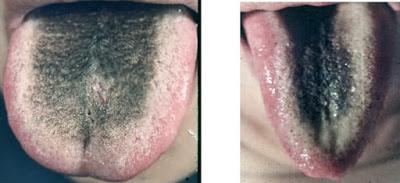 TongueQilevelFireslide87
