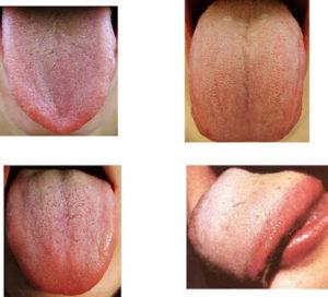 TongueQilevelslide86