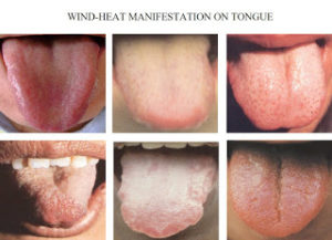 windheattonguepictures