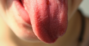 Tongue_diagnosis