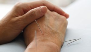 clinical_use_of_the_heart_channel_in_acupuncture