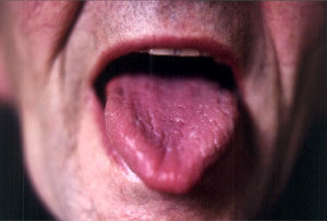tongue1