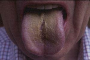 tongue10