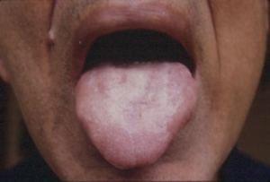 tongue11