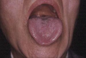 tongue12