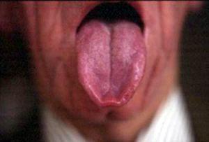 tongue8