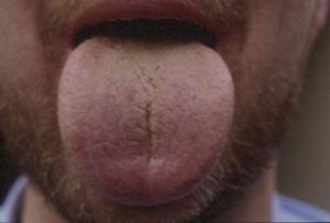 Tongue Gallery
